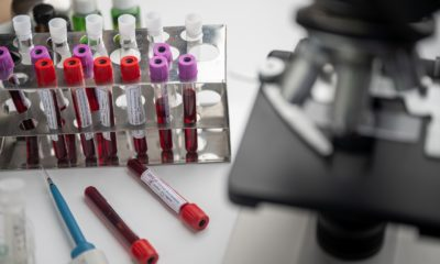 This picture show a microscope with some blood samples.